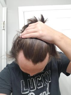 Hair is a striking feature of human body. Hair loss, especially by female/male pattern baldness is matter of great concern. Pattern baldness is particularly is very troubling condition. In this type of baldness the hair [. Bad Hairline, Thinning Hairline, Hairstyles For Receding Hairline, Receding Hair Styles, Face Shape Hairstyles, Thin Hair Haircuts, Cool Haircuts, Widows Peak Hairstyles, Regrow Hair Naturally