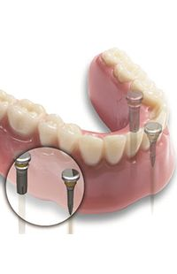 dental implants Baltimore