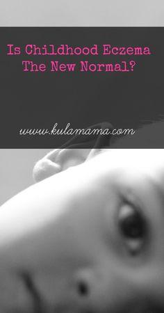 Is Childhood Eczema The New Normal? Holistic Remedies for Childhood Eczema - Kula Mama