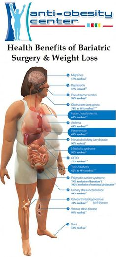 Health benefits ot Bariatric Surgery & Weight Loss     #mexicogastricsleevesurgery #lowcostgastricsleevesurgerycost #gastricsleevesurgery #gastricsleevemexicopackage #gastricbypassmexico #sleevesurgerymexico #stomachsleevesurgerymexico #bestgastricsleevesurgerymexico