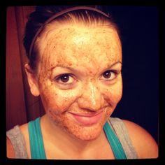 """Acne scar mask: 1/2 tsp. nutmeg & cinnamon, 1 tsp. honey, 2 Tbsp. fresh lemon juice. Leave on 10-30 mins. - depending on """"burn feeling"""" - no more than 3x's per week."""