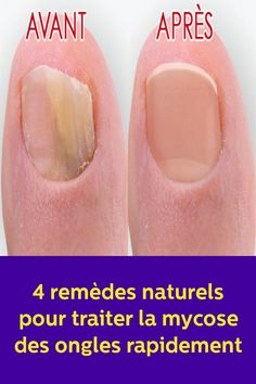 four pure treatments to deal with nail fungus shortly Diy Beauty, Beauty Hacks, Hot Flash Remedies, Brittle Nails, Baking Soda Uses, Nail Fungus, Hand Care, Diy Cleaning Products, Trendy Nails