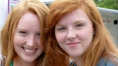 New study suggests redheads are at higher risk of melanoma even if they avoid the sun.