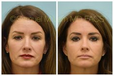 This 45-year-old woman is shown before and 1 year after upper blepharoplasty, facial fillers, upper facial Botox, and full-face MesoBotox.  As can be seen, one-session of MesoBotox has changed the facial skin quality, lower facial wrinkles, and facial shape that has lasted year and will most likely persist except for the effects of ongoing aging. Hyaluronic Acid Fillers, Facial Fillers, Eyelid Surgery, 45 Years, Hair Transplant, Full Face, Old Women, Year Old, Shape