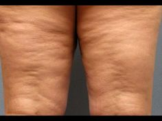 Eliminate cellulite with this Magic ingredients - women a day - Banos chicos - Belleza Beauty Care, Beauty Skin, Beauty Hacks, Skin Firming Lotion, Fitness Diet, Health Fitness, Massage Tips, Natural Home Remedies, Vegetarian Recipes