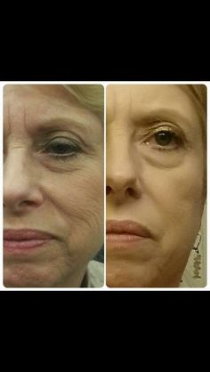 Nerium AD real results. Contact me today for details! http://sheilaburns.nerium.com/