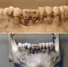 Dental work found on a year old mummy in ancient Egypt Ancient Egypt, Ancient History, Remedies For Tooth Ache, Dental Cosmetics, William Faulkner, Find Work, Oral Health, Dental Health, Dentistry