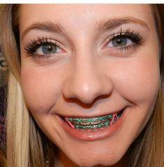 Cute Braces Colors, Cute Girls With Braces, Braces Girls, Braces Smile, Teeth Braces, Braces Retainer, Lingual Braces, Brace Face, Perfect Teeth