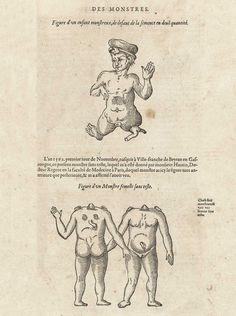 Author: Paré, Ambroise (1510?-1590).    Title: [Les Oeuvres]    Publication Information: A Paris : Chez Gabriel Buon, 1585.
