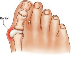 Pilates | Exercises for Bunions