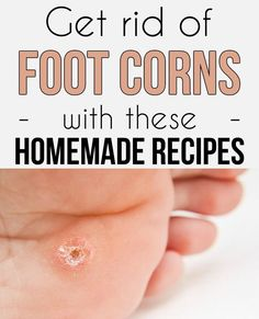 Learn how to get rid of foot corns with these 7 homemade recipes.