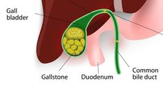 If you have been diagnosed with gall stones, you might be worrying about the surgery that your doctor has recommended for removing your gall ...