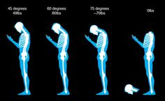 Are you currently reading this while hunched over your phone? If so, here is a very scary wake up call. Text neck is real. Read this Infographic and learn all about text neck. And remember, you only get one neck. Neck And Back Pain, Neck Pain, Chiropractic Humor, Spine Problems, Trending Topic, Bad Posture, Very Scary, Your Head, Sore Muscles