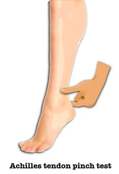 Types of achilles tendon injuries