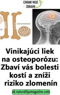 Vinikajúci liek na osteoporózu: Zbaví vás bolesti kostí a zníži riziko zlomenín