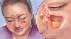 Diese einfache Methode hilft innerhalb kürzester Zeit bei einer Nasenneb...