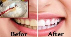 Whiten Your Teeth With Baking Soda