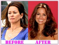 Augmentation brooke burke breast