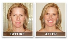 Hi! I advise to visit the site. This anti-aging will reduce all fine lines and wrinkles!