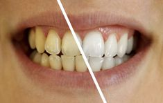 Easy tips to improve your smile