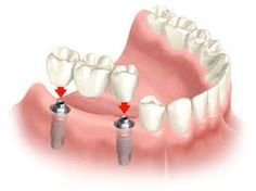 Bridge replaces 3 missing teeth with two implants. Dental Implant Surgery, Implant Dentistry, Teeth Implants, Cosmetic Dentistry, Teeth Surgery, Oral Surgery, Dental Bridge Cost, Tooth Replacement, Emergency Dentist