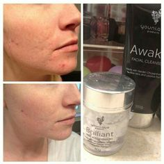 Looking for a great skin care line? Say goodbye to oily skin, acne, eczema and more with Awake cleanser & Brilliant moisturizer!  Order yours today at www.themakeupmogul.com