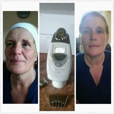 If you recognize the proper way to do things you will get to your healthy skin objectives. Gorgeous skin starts off with excellent natural skin care. Discover how to stick to a better plan. Nu Skin, Face Skin, Galvanic Facial, Galvanic Body Spa, Anti Aging Skin Care, Natural Skin Care, Beauty Skin, Beauty Box, Beauty Secrets