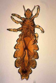 pictures and images of head lice from IdentifyUS and others This Or That Questions, Image, Facts, Spiders, Schools, Bugs, Wellness, Healthy, Pictures
