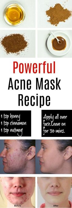 Eliminate Your Acne-Remedies - Natural Acne Mask - Free Presentation Reveals 1 Unusual Tip to Eliminate Your Acne Forever and Gain Beautiful Clear Skin In Days - Guaranteed! Homemade Acne Mask, Homemade Skin Care, Diy Acne Mask, Homemade Acne Remedies, Natural Acne Remedies, Best Acne Mask, Honey Acne Mask, Homemade Acne Treatment, Homemade Facials For Acne