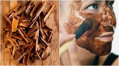 Cinnamon mask for the skin is a real miracle: Removes acne scars and . How To Get Rid Of Pimples, Acne Scar Removal, Best Acne Treatment, Remove Acne, Acne Scars, Diy Face Mask, Cinnamon, Health And Beauty, Face Makeup
