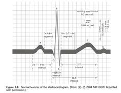 Normal features of the electrocardiogram Nursing School Tips, Nursing Tips, Nursing Notes, Medical Surgical Nursing, Cardiac Nursing, Paramedic Student, Ekg Interpretation, Medical Mnemonics, Respiratory Therapy