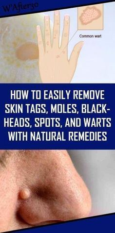 How to Easily Remove Skin Tags, Moles, Blackheads, Spots, and Warts with Natural Remedies - Natural Home Remedies Le Mole, Skin Care Routine For 20s, Natural Health Remedies, Herbal Remedies, Holistic Remedies, Acne Remedies, Bloating Remedies, Cold Remedies, Natural Cures