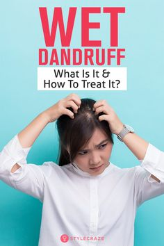 [ Hair Care : Wet Dandruff – What Is It And How To Treat It?I know what you're wondering – why do your sebaceous glands suddenly start acting crazy and Short Curly Hair, Short Hair Cuts, Curly Hair Styles, Diy Hair Care, Hair Care Tips, Hair Buildup, Dandruff Remedy, Girls Short Haircuts, Balayage Color