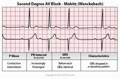 ECG Interpretation - 44 Second Degree Av Block