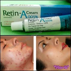 Find everything but the ordinary, Diy Abschnitt, Oily Skin Treatment, Back Acne Treatment, Types Of Acne, Chemical Peel, Anti Aging, How To Get Rid Of Acne, Tips Belleza, Skin Care, Beauty Tricks