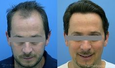 Eddie talks about his recent Treatment for hair loss in Thailand. In some cases, treating the underlying cause will correct the problem more here #hairrestoration #hairtransplants http://www.thaimedicalvacation.com/natural-hair-restoration-transplants/