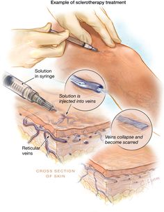 Diagram on sclerotherapy