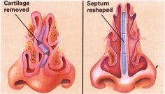 Turbinate Reduction for Blocked Nose - ENT Clinic Sydney #surgery