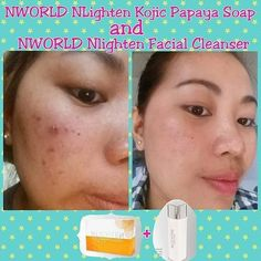 #NLIGHTEN Exclusive from #NWORLD NLighten Kojic Papaya with Glutathione Soap NLighten Facial Cleanser Get upto 25% lifetime discount PM me directly for orders / additional information CP/Viber: 63988967563 Instagram: ann_nlightenshop Follow me on Twitter:@Rachel_nworld Facebook :http://ift.tt/1YRRvDR (No calls please)