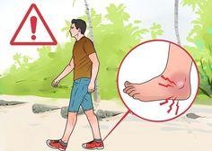 Bệnh gout và những điều cần biết - Gout AZ - Hỗ trợ điều trị bệnh gout hiệu quả