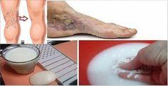Mi Amigo Dermatólogo Me Enseñó Estos Remedios para desaparecer Las Arañitas ó Várices De Las piernas | Salud con Remedios