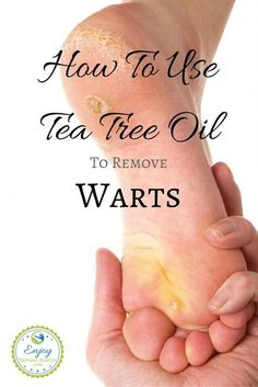 How To Use Tea Tree Oil To Remove Warts - you don't need to use those toxic over the counter treatments to get rid of your warts. Tea tree oil will remove them naturally.