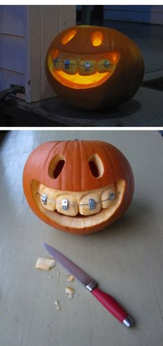 Pumpkin with braces ( http://ingobutsch.com/44766/397736/this-and-that/pumpkin-with-braces )