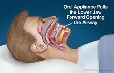 Most Of Us Have Dealt With A Snoring Sleeper. It's Probably Their Jaws Fault But There's Hope For A Good Nights Sleep.