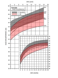 Female Growth Charts for Williams Syndrome - head circumference, height and weight charts. Pinned by SOS Inc. Resources @sostherapy http://pinterest.com/sostherapy.