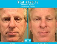 Men use Rodan+Fields too! dmozie.myrandf.com