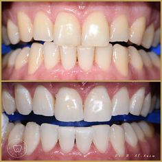 10 Best Zoom Whitening Images Zoom Teeth Whitening Dupes Natural