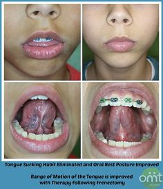 1000+ images about Tongue and Lip Ties on Pinterest ...