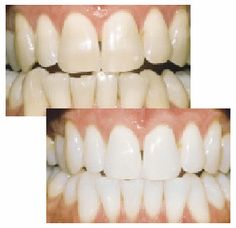 Los Angeles Cosmetic Dentist Information.: Does Your Dentist Offer Zoom! Teeth Whitening Technology?