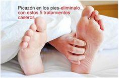 5 tratamientos caseros para la picazón de los pies ~ Belleza y Peinados